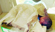 العثور على طفل لقيط عمره يومين داخل كيس قمامة في الوحدات