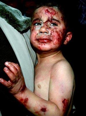 اليورانيوم المنضب والفسفور الأبيض.. غزة مصرحا لتجارب الأسلحة الأمريكية