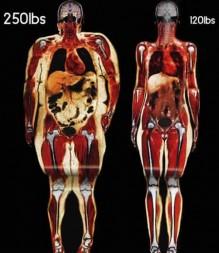 أنواع الدهون، وهل كل الدهون ضارة ؟