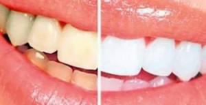 هكذا تتخلصون من اصفرار الأسنان في المنزل