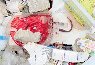 الزرقاء تصرخ من النفايات الطبية ووزارتي الصحة والبيئة خارج الخدمة