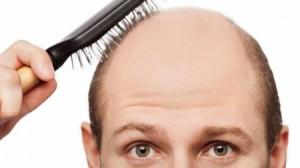 للرجال الصلع .. نمو الشعر بات ممكنا في 6 أيام
