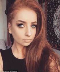 شابة بريطانية تكشف عن علاج سحري للأكزيما...اليكم االتفاصيل!