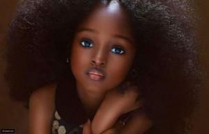 تعرفوا على أجمل طفلة في العالم التي أسرت القلوب بجمالها الاستثنائي