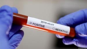 تسجيل ٣ اصابات جديدة بفيروس