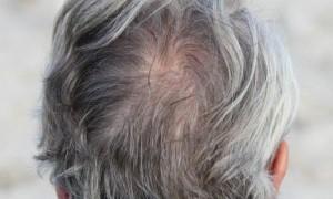المكسيك : القبض على شخصين صبغا شعرهما بالأبيض لتلقي لقاحات كورونا