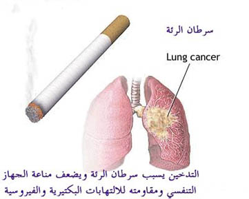 اختصاصي أمراض قلبية: 70 بالمائة من ضحايا الجلطة في الأردن من المدخنين