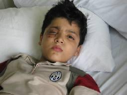 طفل يفقد إحدى عينيه في السلط بسبب عبثية وعدوانية اطفال
