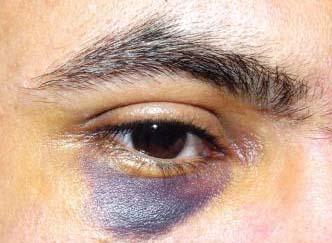 تعرض مدير مياه عين الباشا للضرب من موظفين