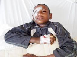 الطالب الهويمل يغادر المستشفى ومصير عينه مازال مجهولا