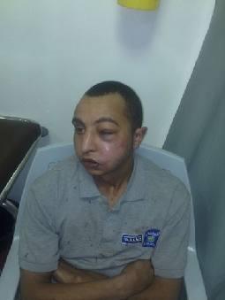 رقيب سير يهشم وجه سائق في إربد بدعوى تحقير دورية شرطة